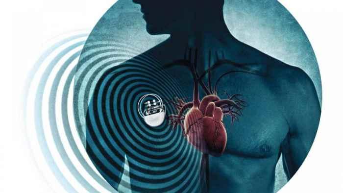 Synchromax el GPS para el corazón, un monterizo entre los evolucionarios de la ciencia